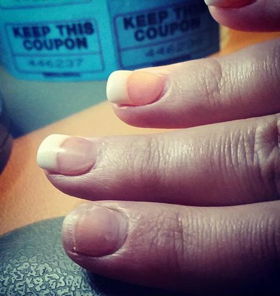 Check out how i removed my acrylic nails with this super easy diy hack heres my nail after the tip broke off in less than an hour id picked the rest of the acrylic off with my bare hands bad idea meg summerstsm solutioingenieria Image collections